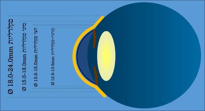 """קוטרי סוגי עדשות מגע הסקלרליות דר' ניר ארדינסט. עדשת מגע סקלרלית בעלי קוטר של 18 עד 24 מ""""מ, עדשת מגע מיני סקלרלית עם קוטר של 15 עד 18 מ""""מ, עדשת מגע חצי סקלרלית עם קוטר של 13.6 עד 15 מ""""מ ועדשת מגע קורניו סקלרליות בעלת הקוטר הקטן ביותר שנע מ12.9 עד 13.5 מ""""מ."""