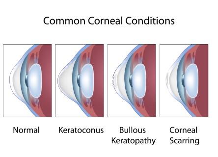 Mini scleral contact lenses