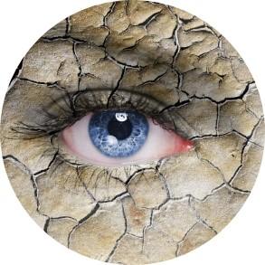 טיפול של עדשות סקלרליות בעין יבשה דר' ניר ארדינסט