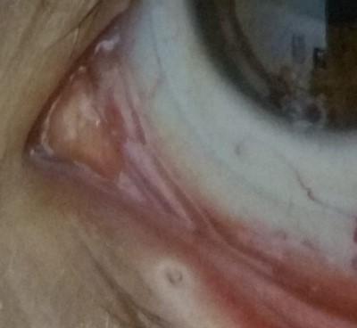 טיפול של עדשות סקלרליות בעין יבשה דר' ניר ארדינסט. בתמונה עדשת מגע סקלרלית לטיפול ביובש בקוטר 17 ממ' יחד עם פלאג בפונקטה התחתונה.